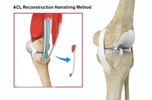 ACL Reconstruction Hamstring Tendon Image