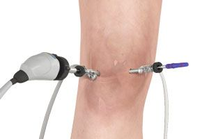 Knee Arthroscopy Image